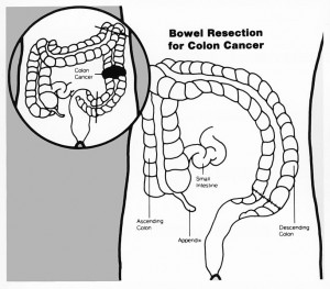 Bowel resection illustration