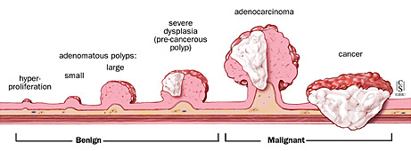 colorectal cancer stages